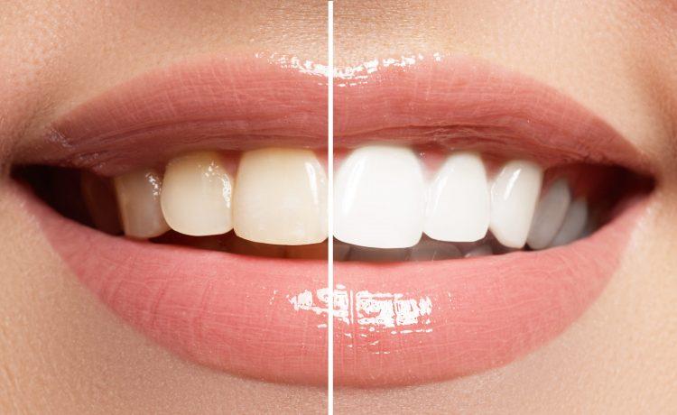 وصفات الكركم لتبييض أسنان العروس