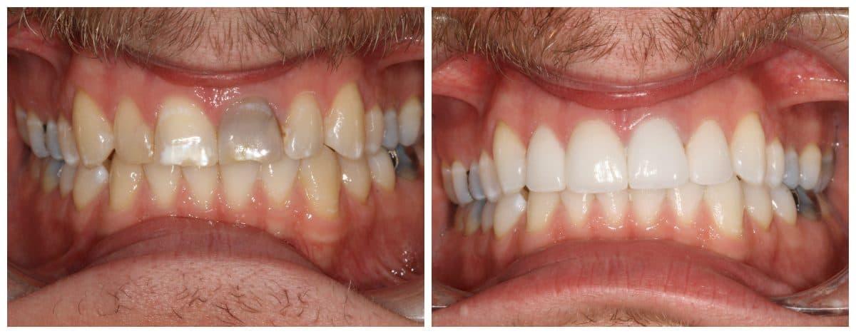 إخفاء عيوب الأسنان