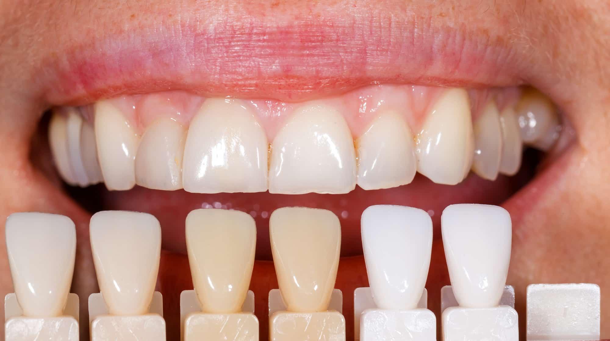 عدسات الأسنان اللاصقة لابتسامة رائعة