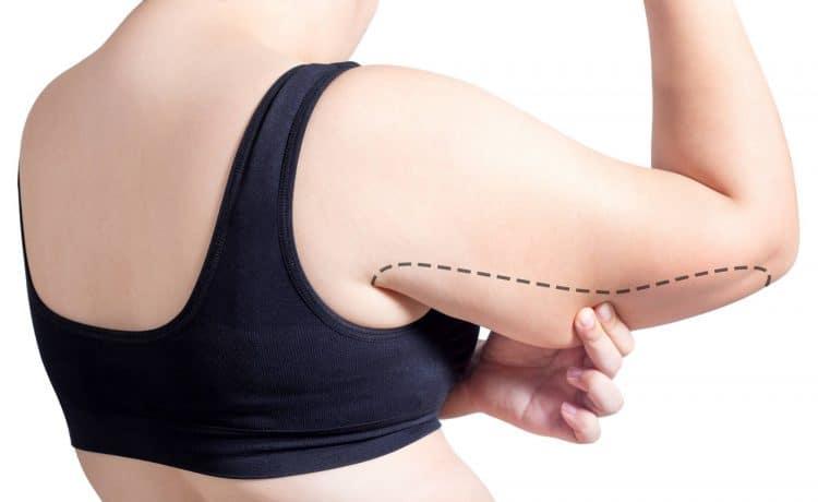 وصفات لعلاج تمدد الجلد