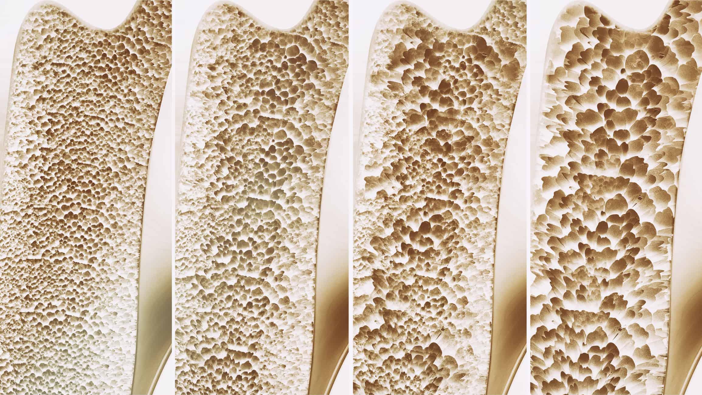 الأعراض الأولية لهشاشة العظام