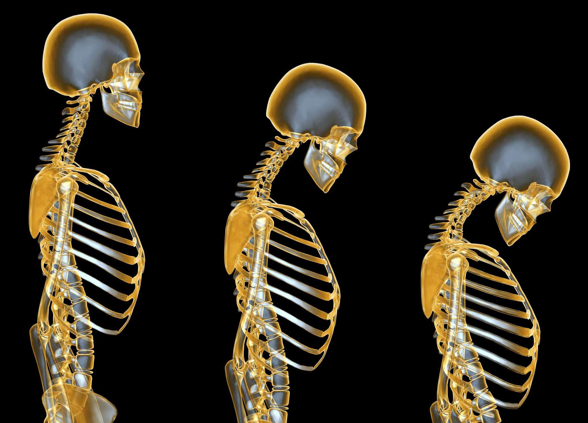 ماهو مرض هشاشة العظام ؟