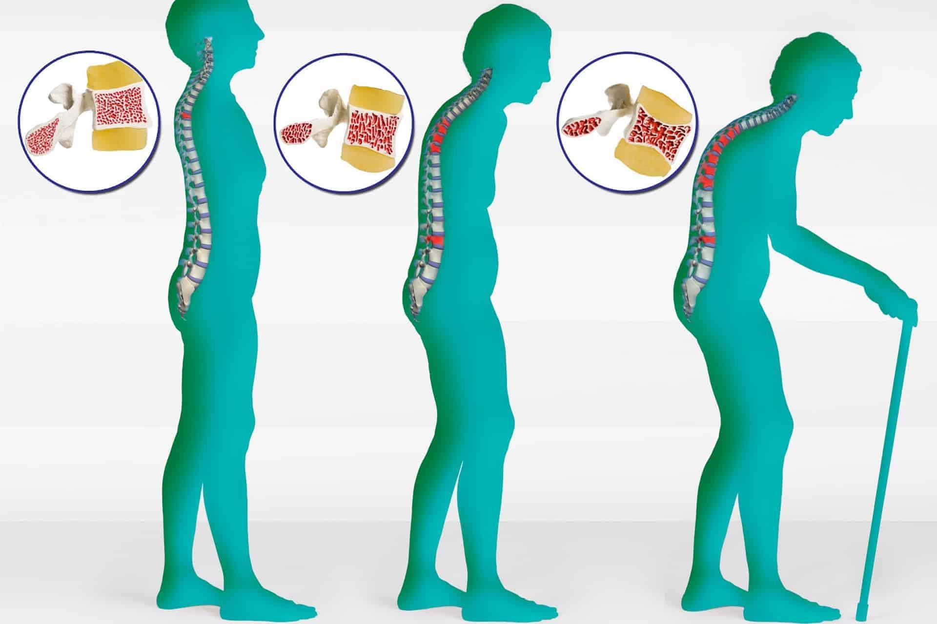 العوامل المتدخلة في الإصابة هشاشة العظام