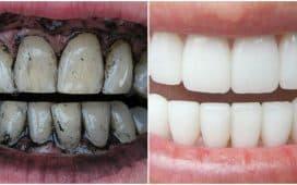 هل خلطات تبييض الأسنان فعالة ؟