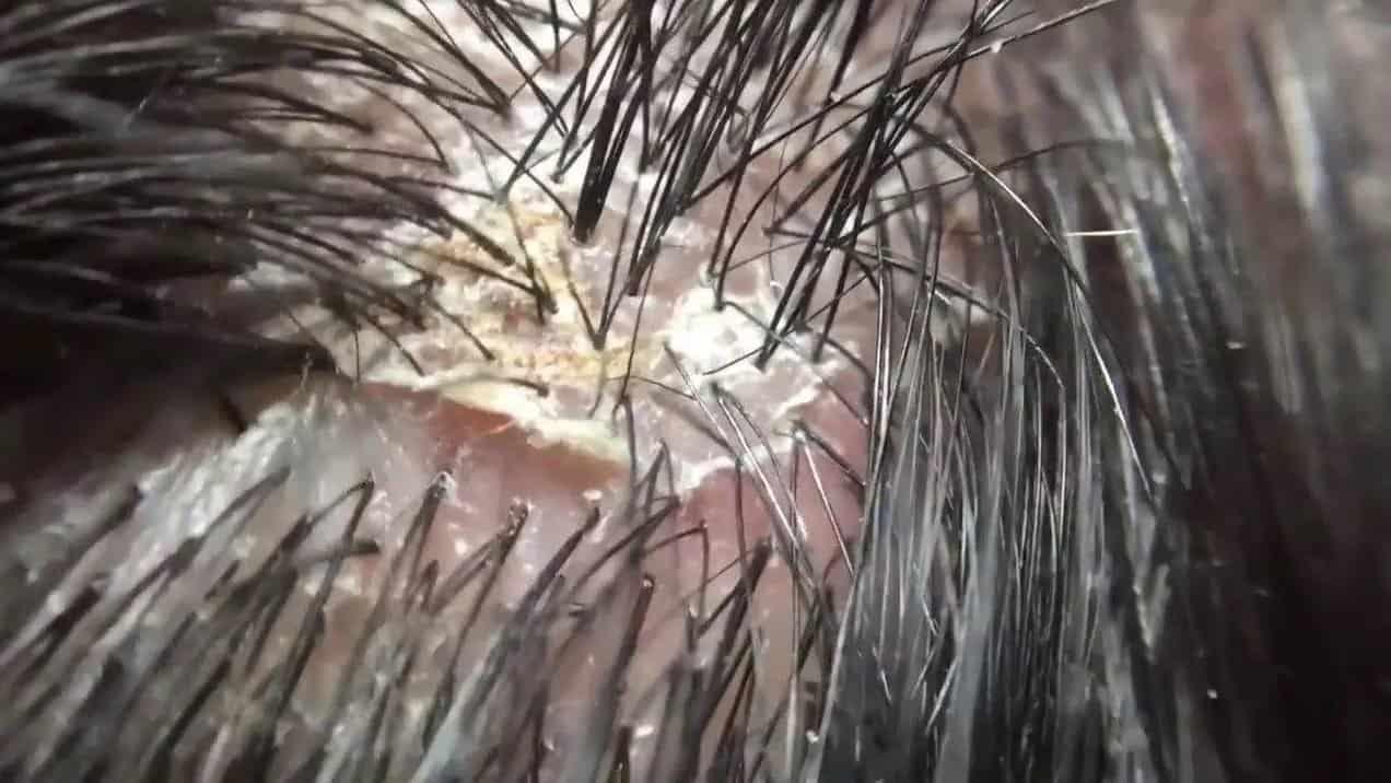 انواع قشرة الشعر وطريقة التخلص منها مجلة عروس
