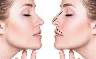 أفضل الطرق لتجميل الأنف دون جراحة